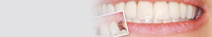 Implants are often the best option for replacing missing teeth.
